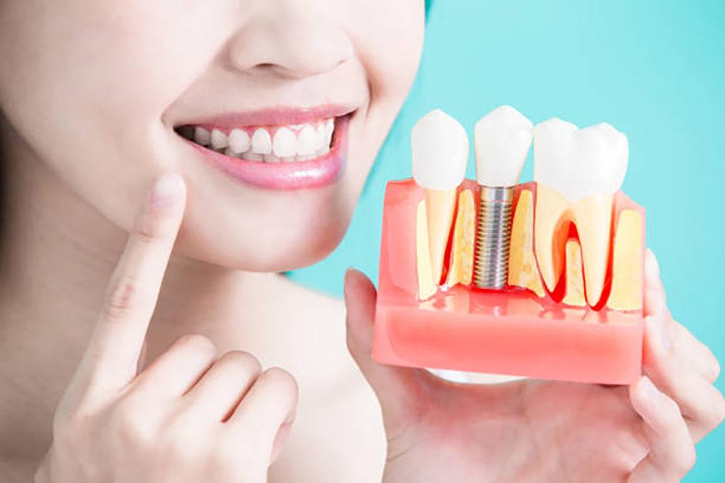 Cattive abitudini che mettono a rischio i denti