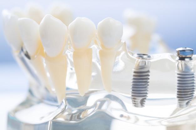 Classificazione impianti dentali